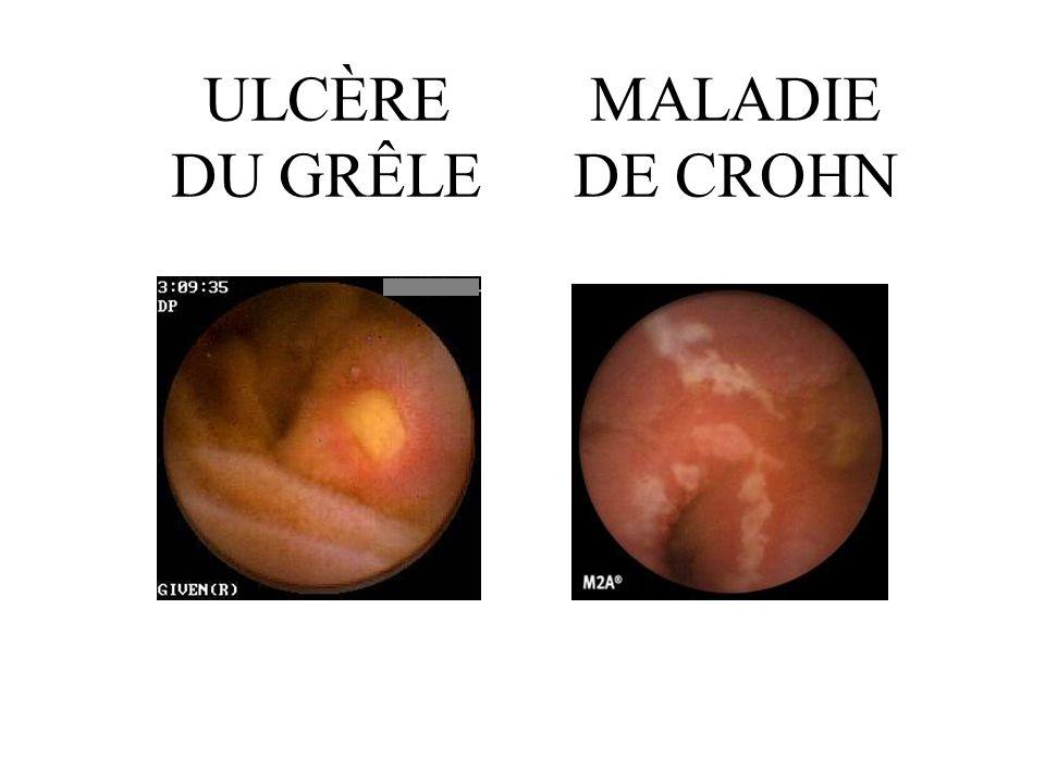 MALADIE DE CROHN ULCÈRE DU GRÊLE