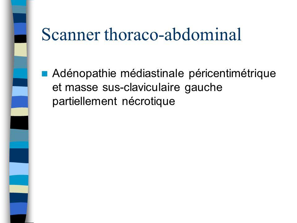 Scanner thoraco-abdominal Adénopathie médiastinale péricentimétrique et masse sus-claviculaire gauche partiellement nécrotique
