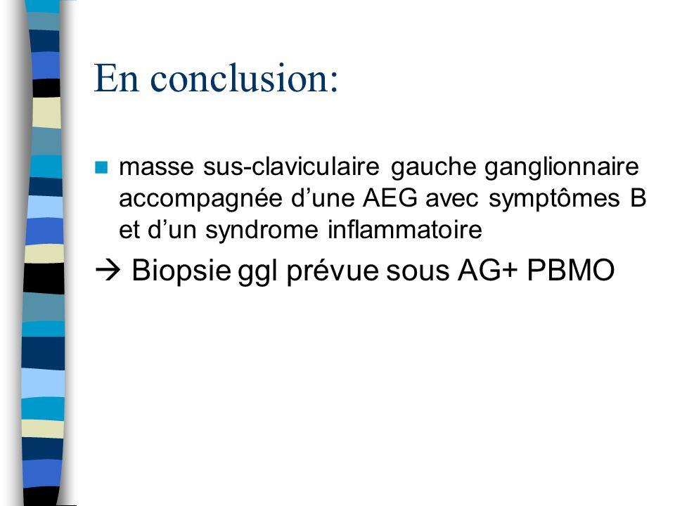 En conclusion: masse sus-claviculaire gauche ganglionnaire accompagnée dune AEG avec symptômes B et dun syndrome inflammatoire Biopsie ggl prévue sous