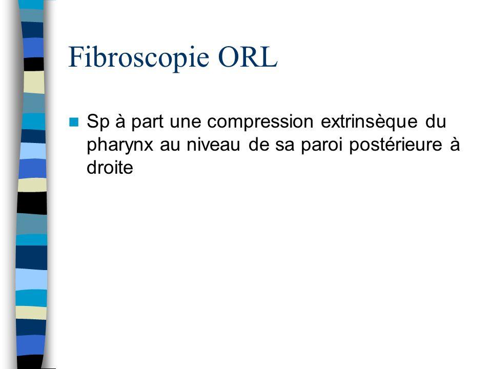 Fibroscopie ORL Sp à part une compression extrinsèque du pharynx au niveau de sa paroi postérieure à droite