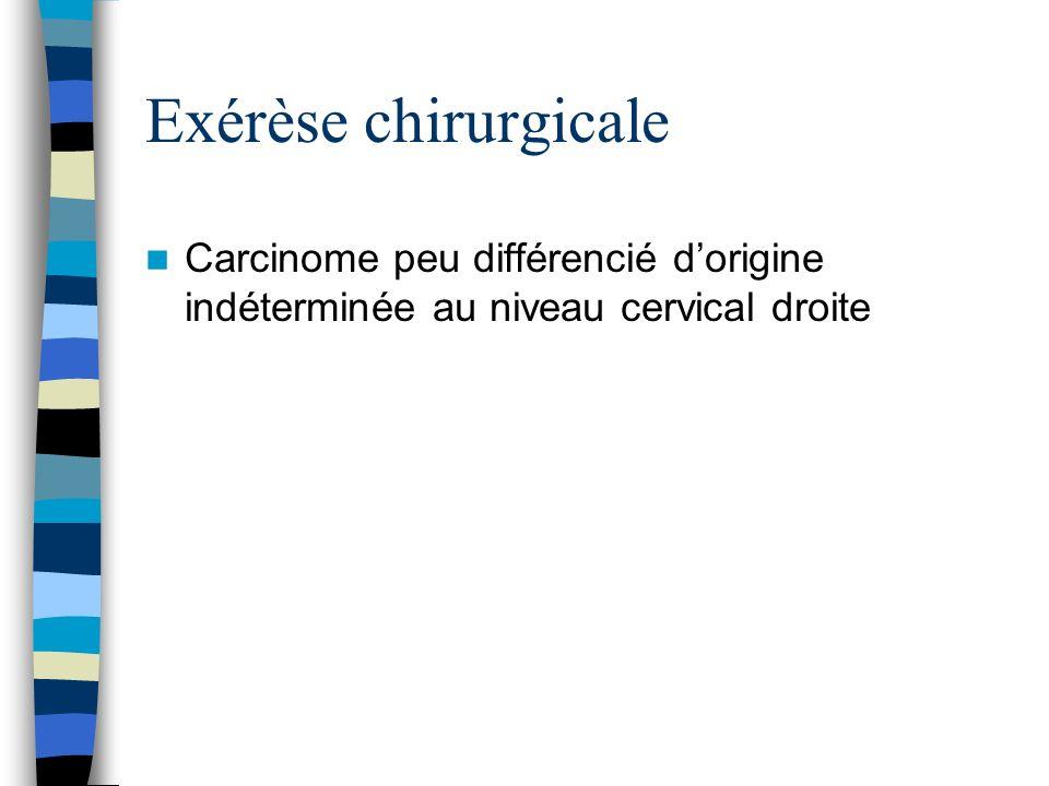 Exérèse chirurgicale Carcinome peu différencié dorigine indéterminée au niveau cervical droite