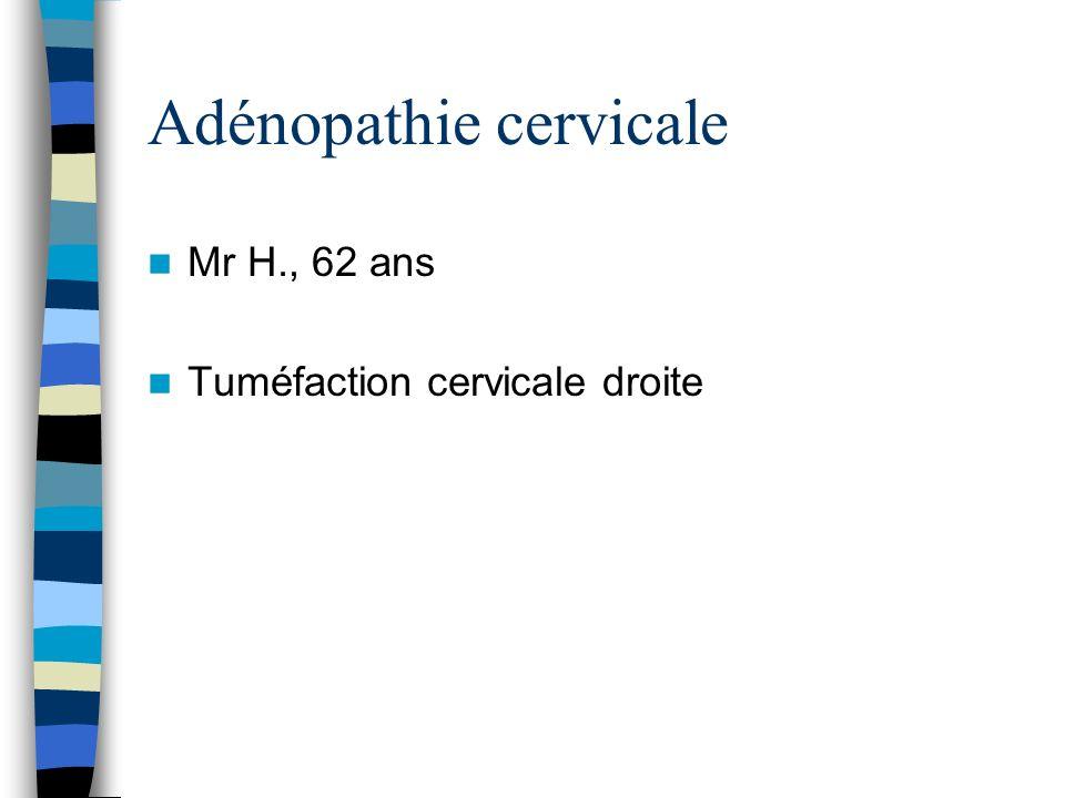 Adénopathie cervicale Mr H., 62 ans Tuméfaction cervicale droite