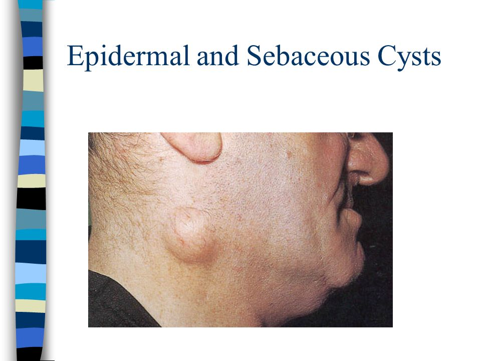 Epidermal and Sebaceous Cysts