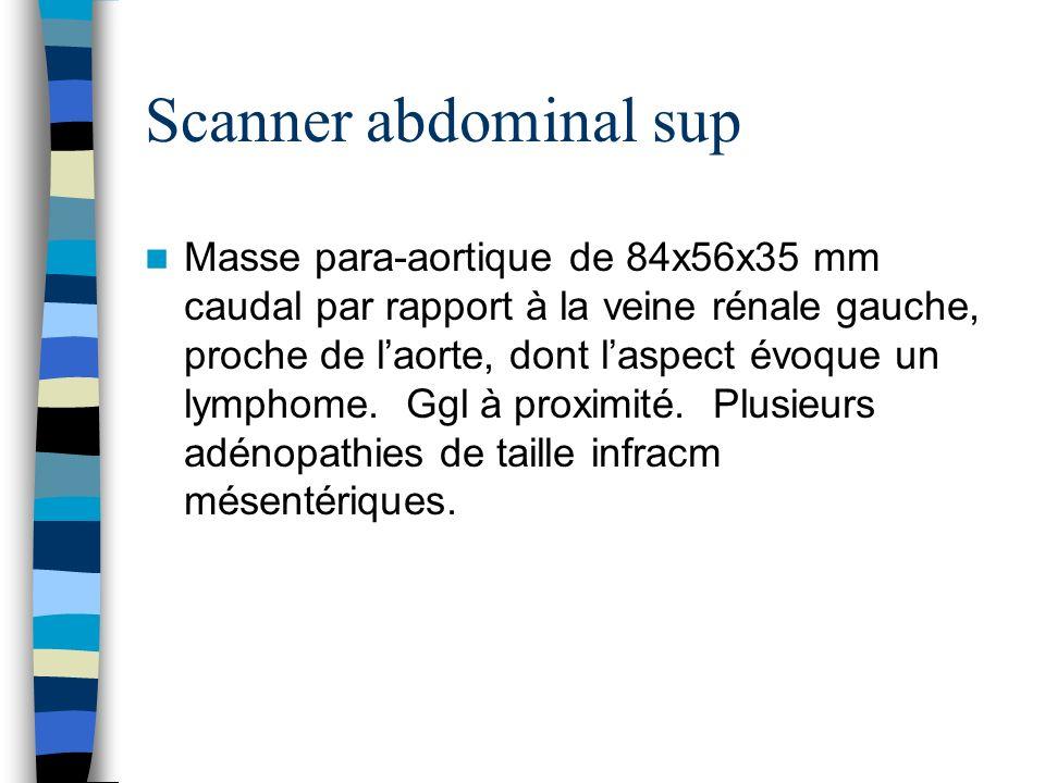 Scanner abdominal sup Masse para-aortique de 84x56x35 mm caudal par rapport à la veine rénale gauche, proche de laorte, dont laspect évoque un lymphom
