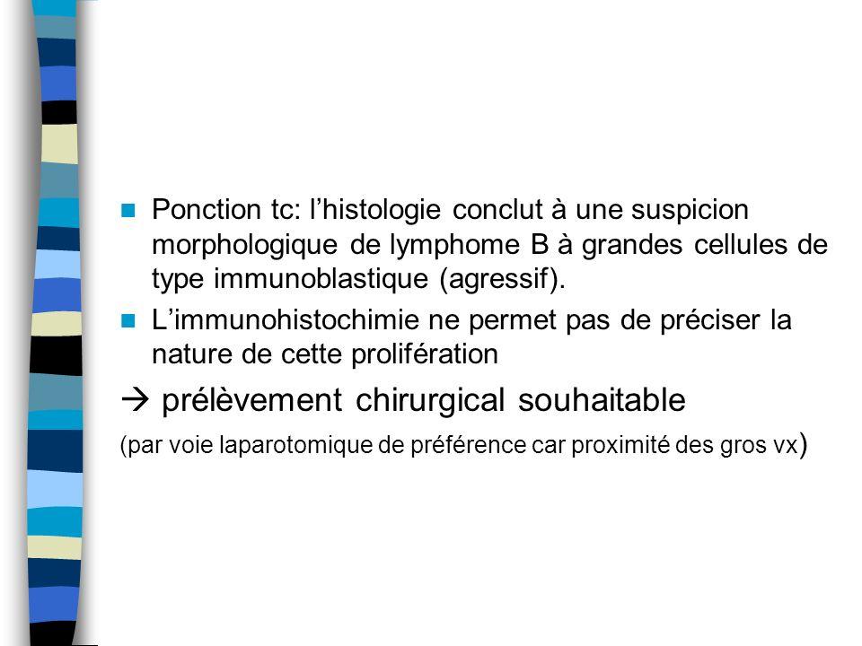 Ponction tc: lhistologie conclut à une suspicion morphologique de lymphome B à grandes cellules de type immunoblastique (agressif). Limmunohistochimie