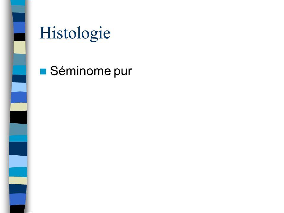 Histologie Séminome pur