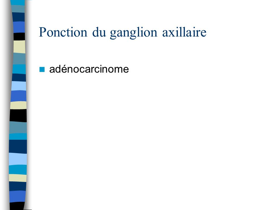 Ponction du ganglion axillaire adénocarcinome