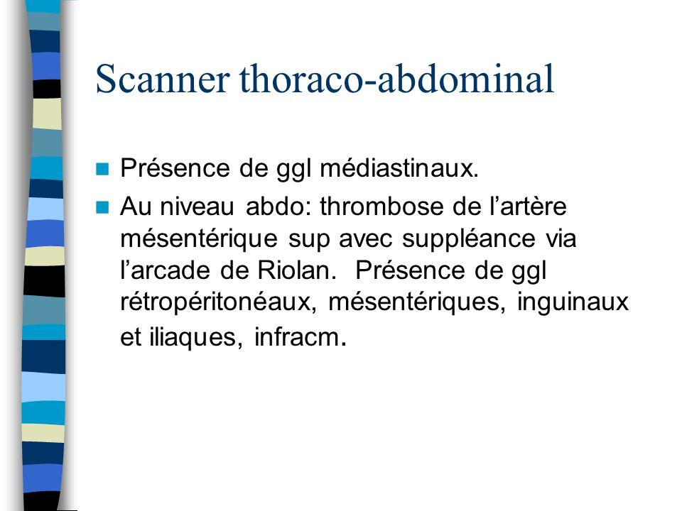 Scanner thoraco-abdominal Présence de ggl médiastinaux. Au niveau abdo: thrombose de lartère mésentérique sup avec suppléance via larcade de Riolan. P