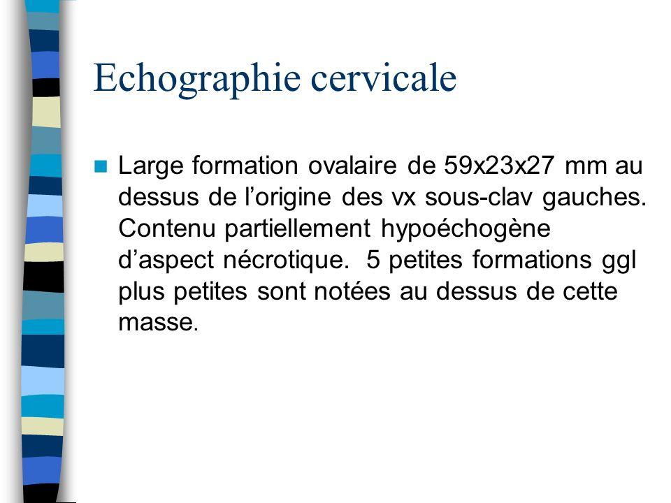 Echographie cervicale Large formation ovalaire de 59x23x27 mm au dessus de lorigine des vx sous-clav gauches. Contenu partiellement hypoéchogène daspe