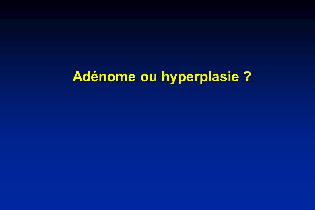 Adénome ou hyperplasie ?