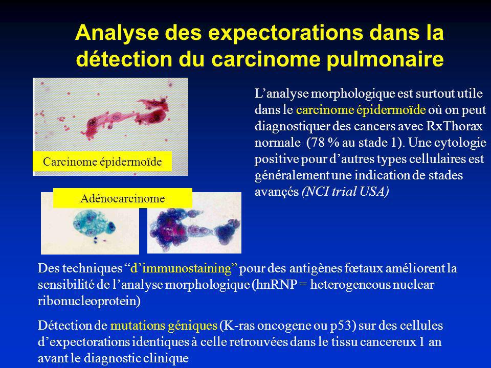 Contribution relative de lanalyse morphologique des cellules des expectorations vs RxThorax dans le diagnostic du cancer Rx Thorax seule: 76% Expectorations seules: 17% Rx Thorax et expectorations: 7%