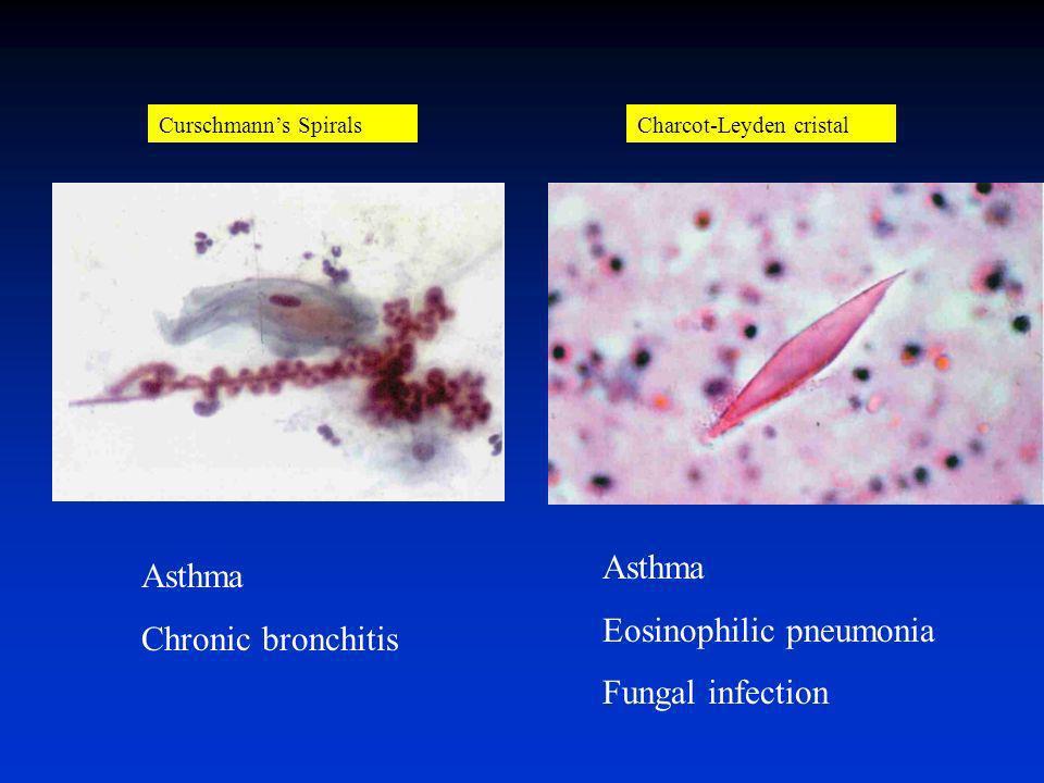 Cytologie des expectorations induites Cellule Pathologie Eosinophiles Neurophiles Lymphocytes Asthme Bronchite chronique non tabagique Exposition à de