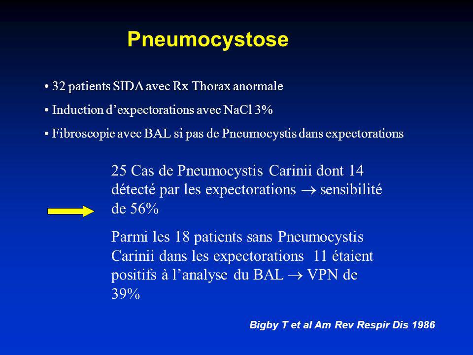 Expectorations (induites) et infections respiratoires basses Pneumonie à Pneumocystis carinii Mycobacterioses Infections mycotiques Légionelloses
