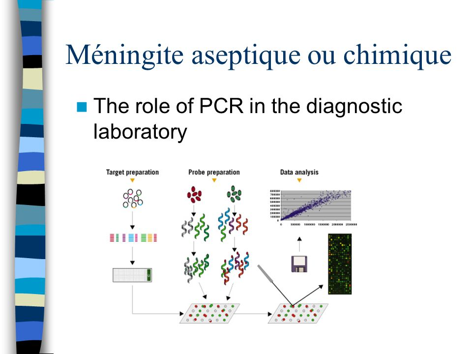 Méningite aseptique ou chimique The role of PCR in the diagnostic laboratory