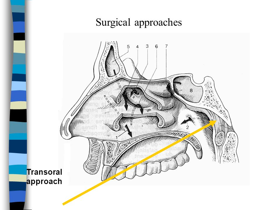 Surgical approaches Transoral approach