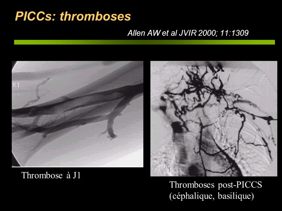 PICCs: thromboses Allen AW et al JVIR 2000; 11:1309 Thromboses post-PICCS (céphalique, basilique) Thrombose à J1