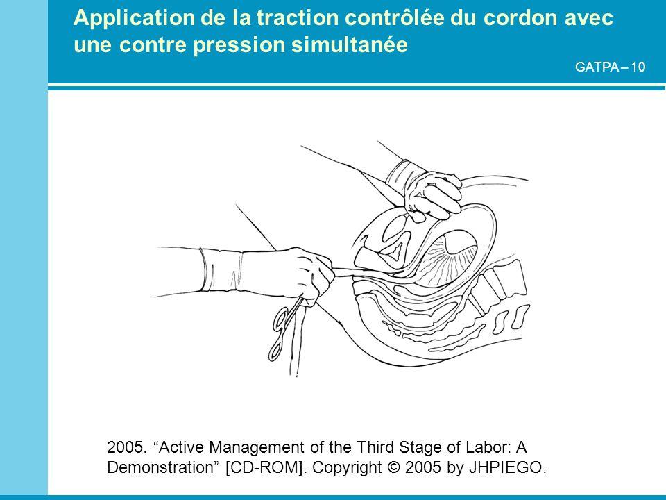 Application de la traction contrôlée du cordon avec une contre pression simultanée 2005. Active Management of the Third Stage of Labor: A Demonstratio