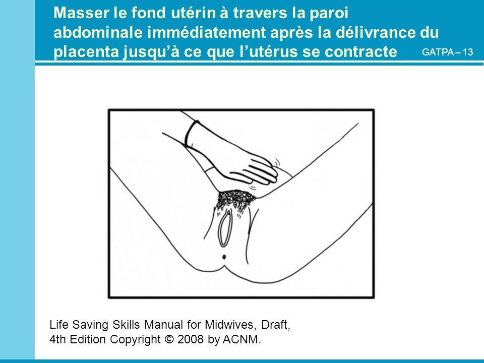 Masser le fond utérin à travers la paroi abdominale immédiatement après la délivrance du placenta jusquà ce que lutérus se contracte Life Saving Skill