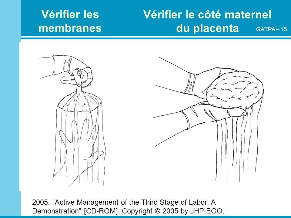 2005. Active Management of the Third Stage of Labor: A Demonstration [CD-ROM]. Copyright © 2005 by JHPIEGO. Vérifier les membranes Vérifier le côté ma