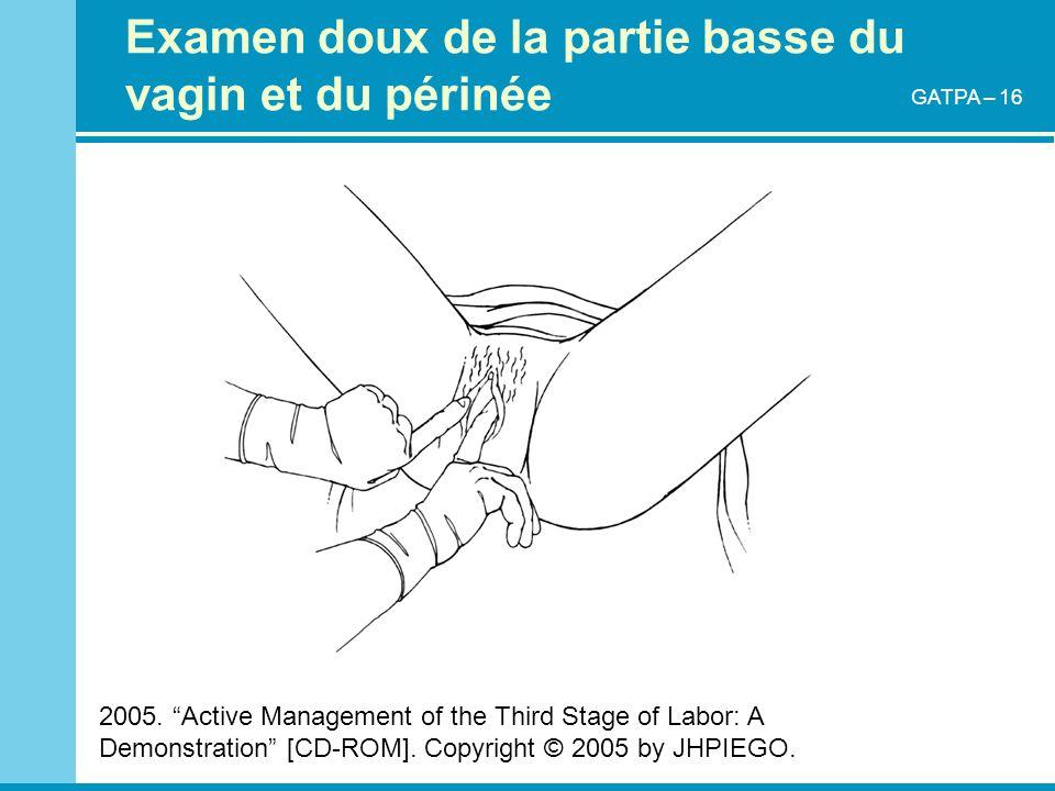 Examen doux de la partie basse du vagin et du périnée 2005. Active Management of the Third Stage of Labor: A Demonstration [CD-ROM]. Copyright © 2005