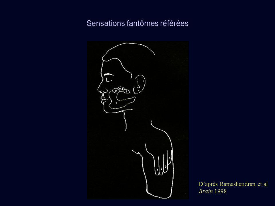 Sensations fantômes référées Daprès Ramashandran et al Brain 1998