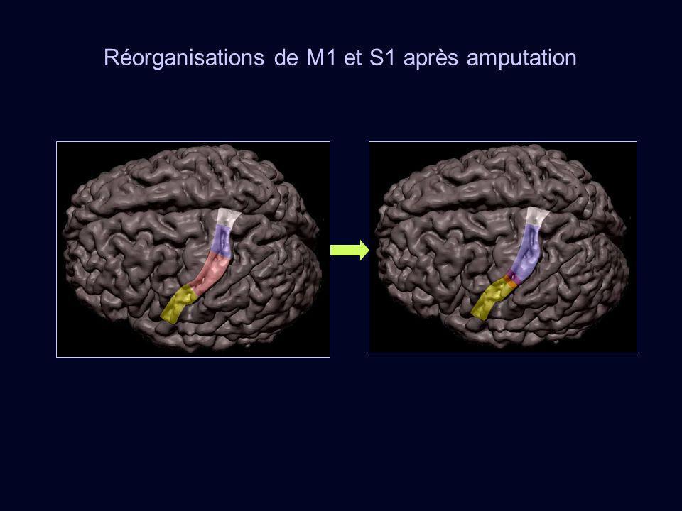 Réorganisations de M1 et S1 après amputation
