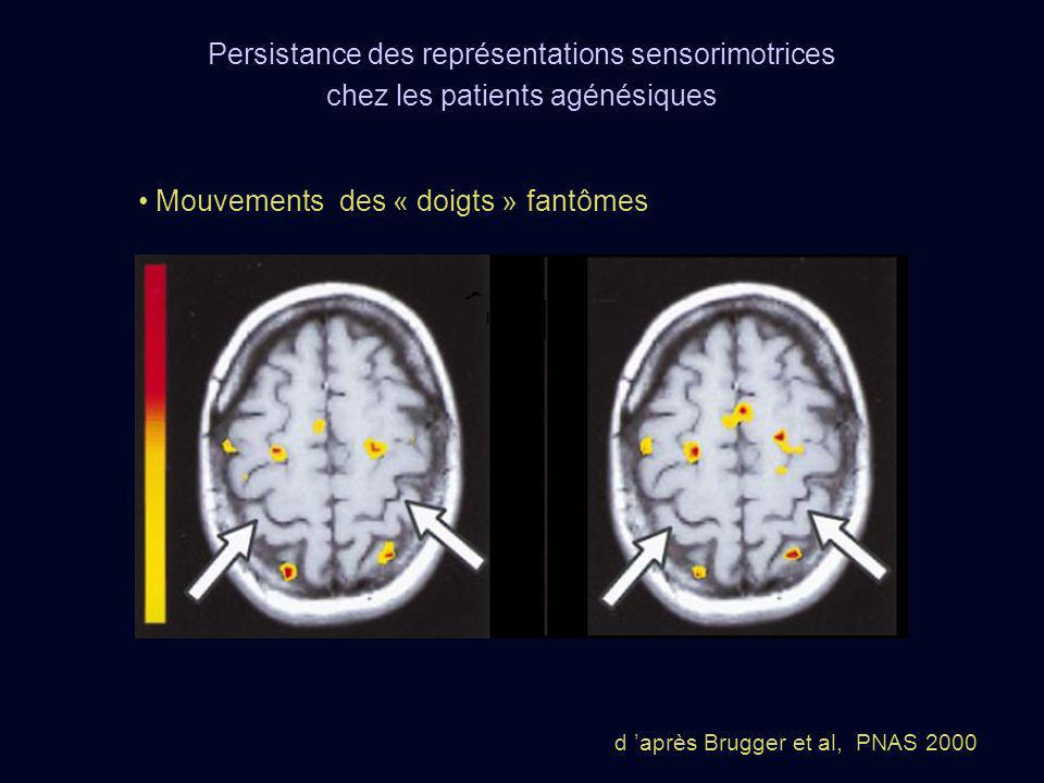 Mouvements des « doigts » fantômes d après Brugger et al, PNAS 2000 Persistance des représentations sensorimotrices chez les patients agénésiques