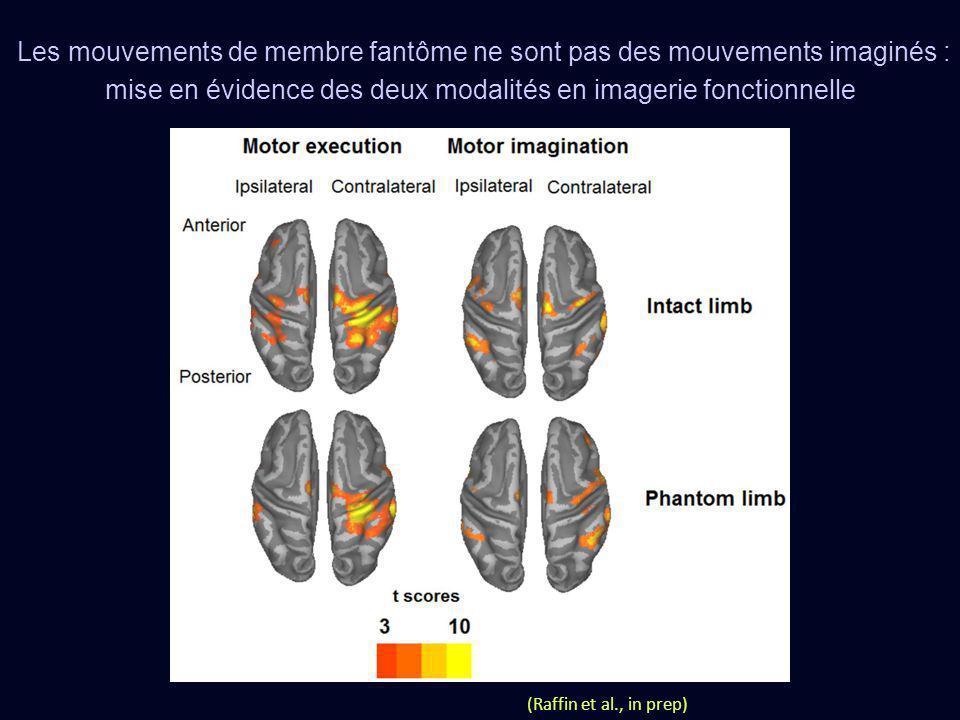 Les mouvements de membre fantôme ne sont pas des mouvements imaginés : mise en évidence des deux modalités en imagerie fonctionnelle (Raffin et al., i
