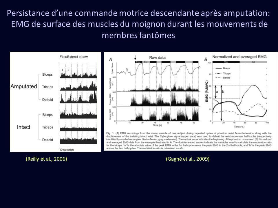 Persistance dune commande motrice descendante après amputation: EMG de surface des muscles du moignon durant les mouvements de membres fantômes (Gagné