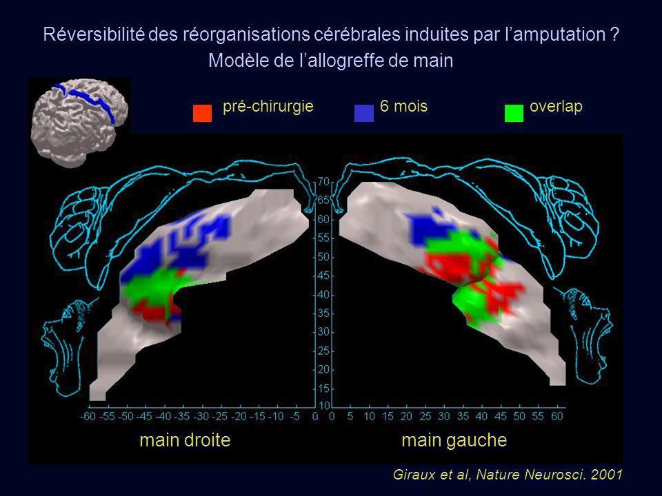 pré-chirurgie 6 mois overlap main droitemain gauche Giraux et al, Nature Neurosci. 2001 Réversibilité des réorganisations cérébrales induites par lamp