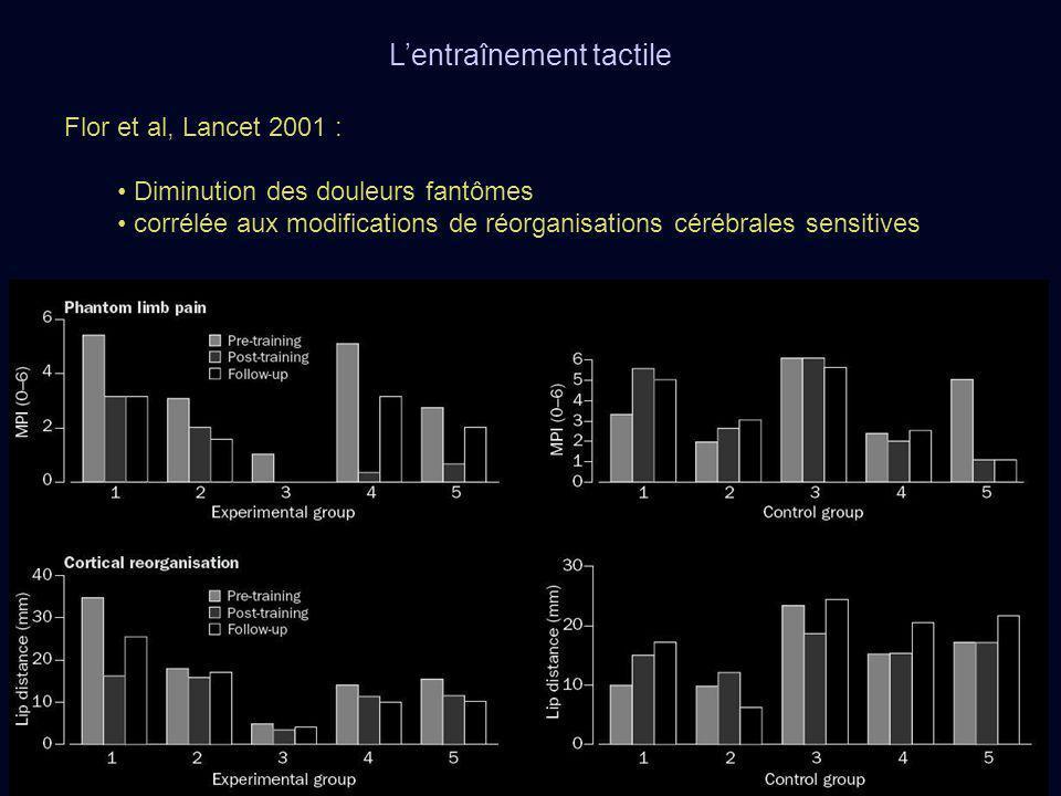 Flor et al, Lancet 2001 : Diminution des douleurs fantômes corrélée aux modifications de réorganisations cérébrales sensitives Lentraînement tactile
