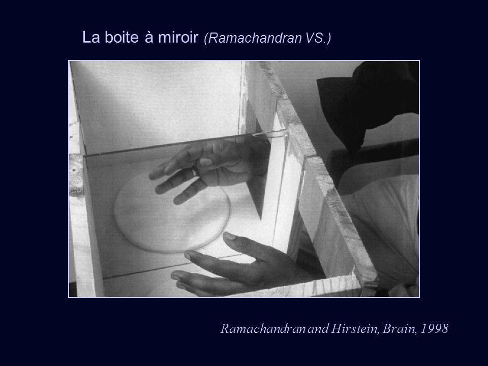 La boite à miroir (Ramachandran VS.) Ramachandran and Hirstein, Brain, 1998