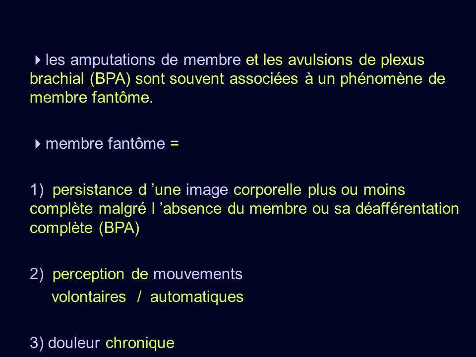 les amputations de membre et les avulsions de plexus brachial (BPA) sont souvent associées à un phénomène de membre fantôme. membre fantôme = 1) persi
