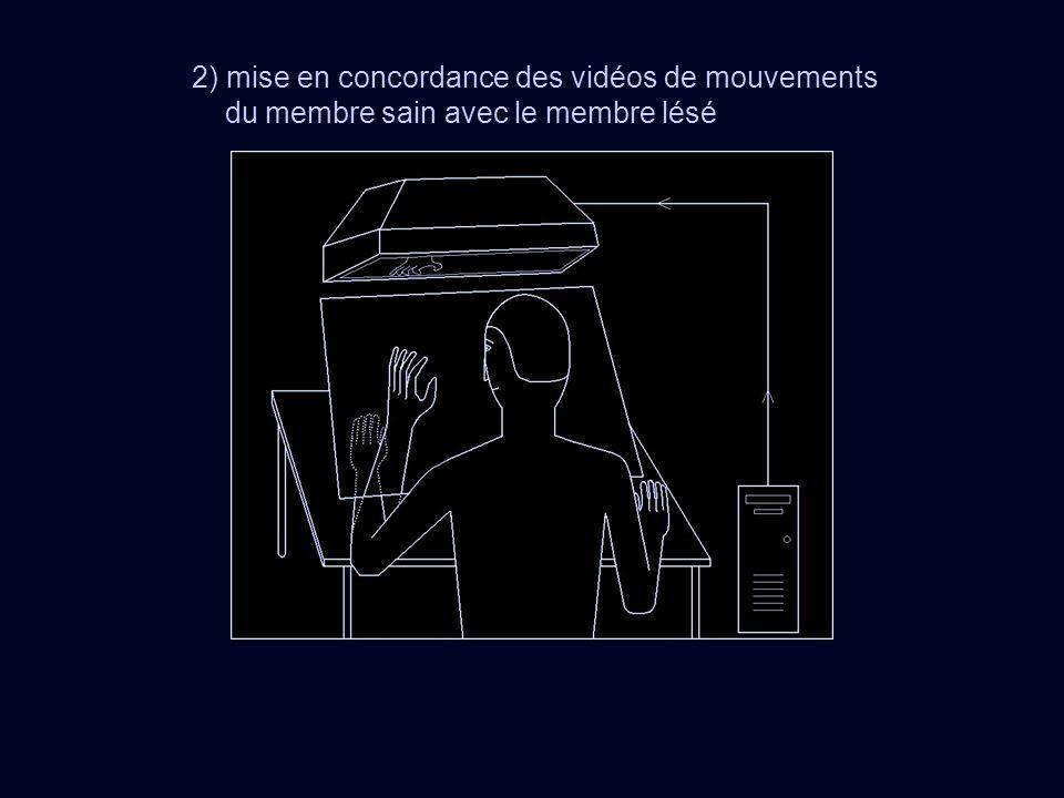 2) mise en concordance des vidéos de mouvements du membre sain avec le membre lésé