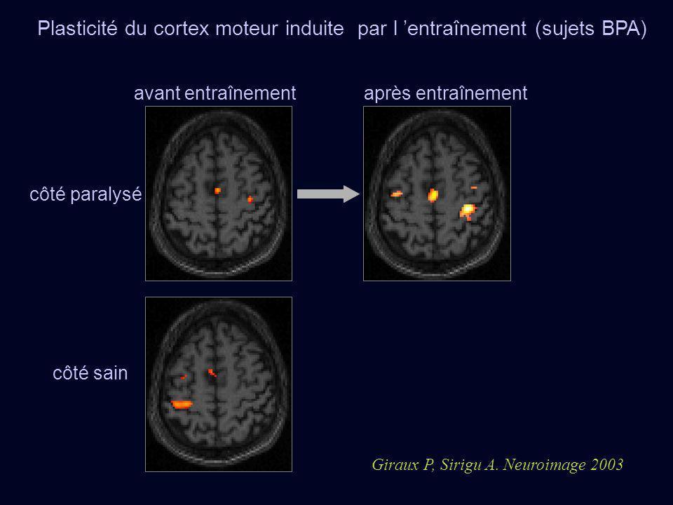Plasticité du cortex moteur induite par l entraînement (sujets BPA) avant entraînement Giraux P, Sirigu A. Neuroimage 2003 côté paralysé côté sain apr