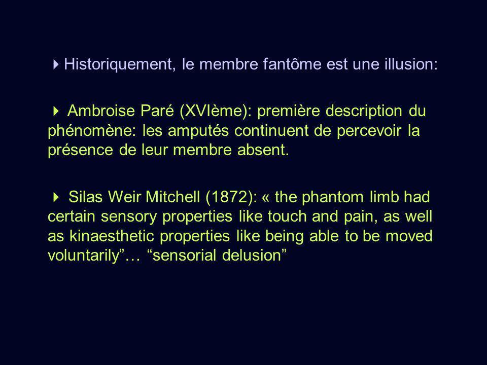 Historiquement, le membre fantôme est une illusion: Ambroise Paré (XVIème): première description du phénomène: les amputés continuent de percevoir la