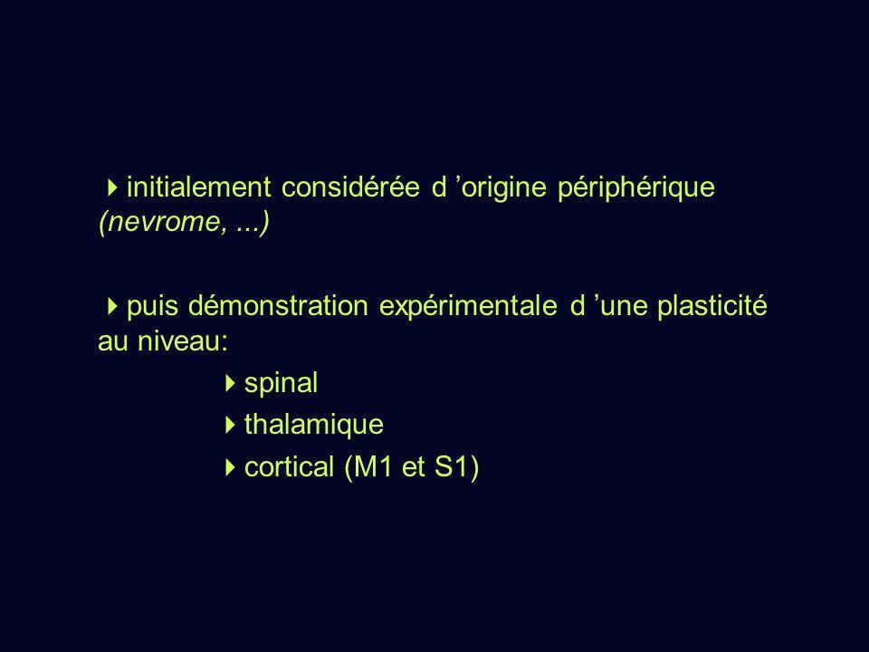 initialement considérée d origine périphérique (nevrome,...) puis démonstration expérimentale d une plasticité au niveau: spinal thalamique cortical (