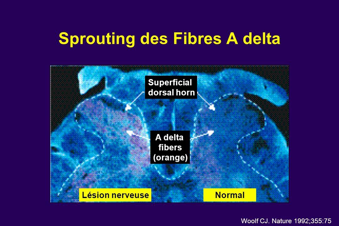 Sprouting des Fibres A delta Woolf CJ. Nature 1992;355:75 Superficial dorsal horn A delta fibers (orange) NormalLésion nerveuse