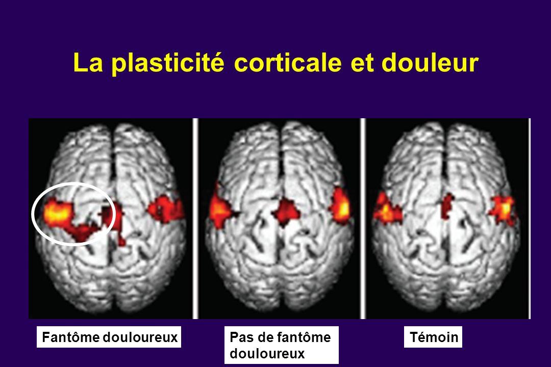 La plasticité corticale et douleur Fantôme douloureux Pas de fantôme douloureux Témoin