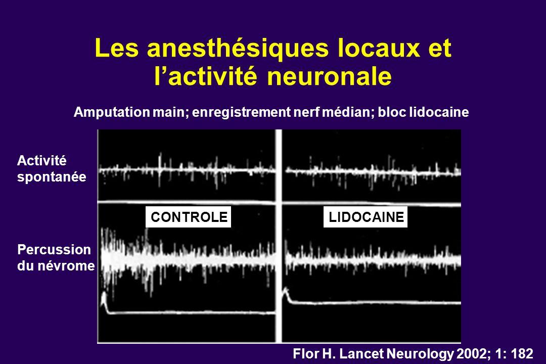 Les anesthésiques locaux et lactivité neuronale Flor H. Lancet Neurology 2002; 1: 182 Amputation main; enregistrement nerf médian; bloc lidocaine Acti