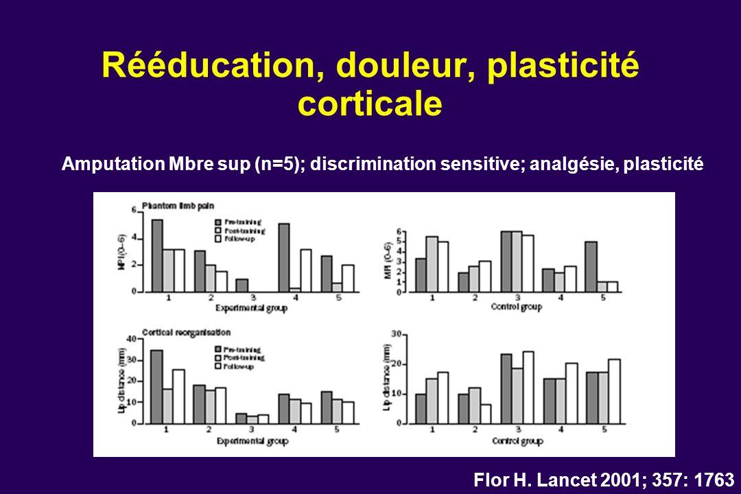 Rééducation, douleur, plasticité corticale Flor H. Lancet 2001; 357: 1763 Amputation Mbre sup (n=5); discrimination sensitive; analgésie, plasticité