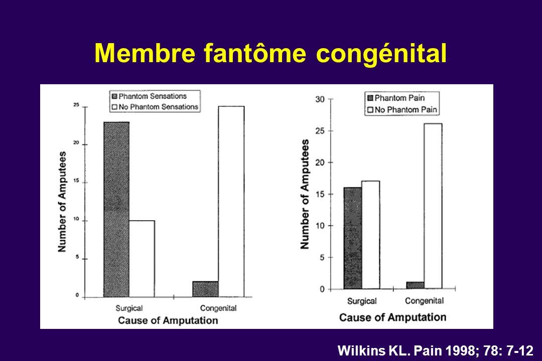 Membre fantôme congénital Wilkins KL. Pain 1998; 78: 7-12