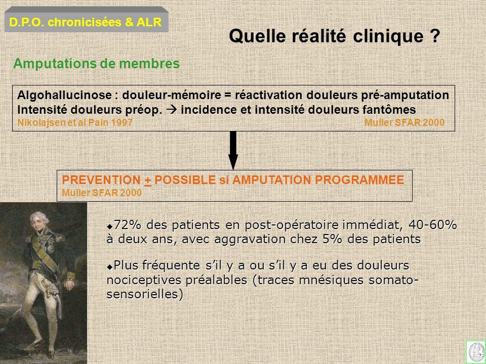 Amputations de membres Algohallucinose : douleur-mémoire = réactivation douleurs pré-amputation Intensité douleurs préop. incidence et intensité doule