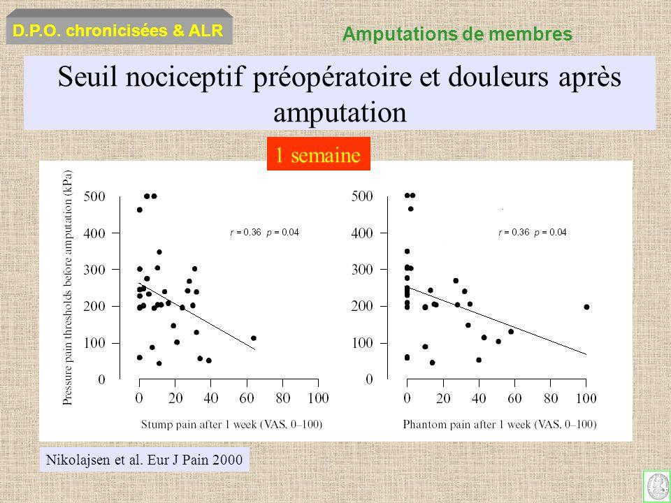 Seuil nociceptif préopératoire et douleurs après amputation Nikolajsen et al. Eur J Pain 2000 1 semaine D.P.O. chronicisées & ALR Amputations de membr