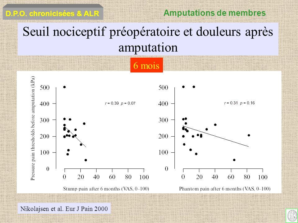 Seuil nociceptif préopératoire et douleurs après amputation Nikolajsen et al. Eur J Pain 2000 6 mois D.P.O. chronicisées & ALR Amputations de membres