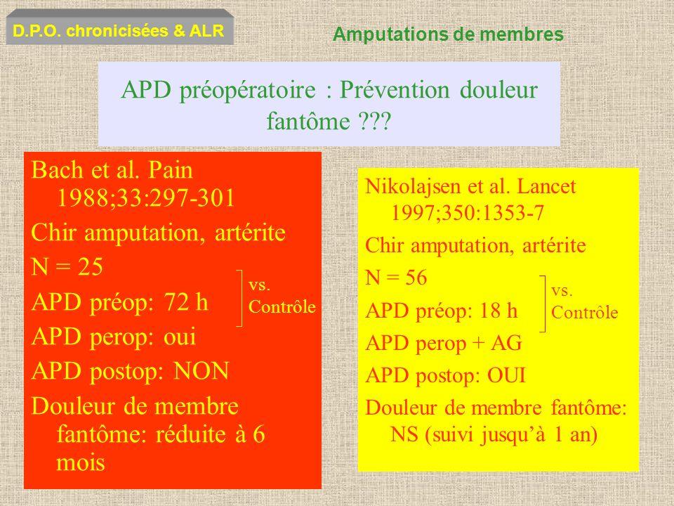 APD préopératoire : Prévention douleur fantôme ??? Bach et al. Pain 1988;33:297-301 Chir amputation, artérite N = 25 APD préop: 72 h APD perop: oui AP
