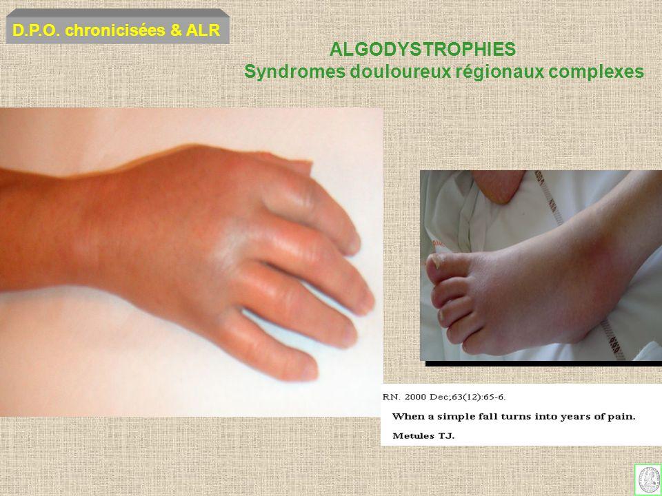 ALGODYSTROPHIES Syndromes douloureux régionaux complexes D.P.O. chronicisées & ALR