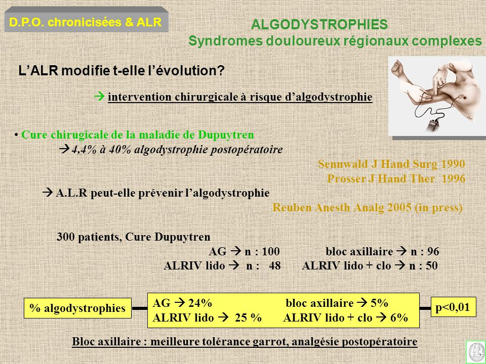 ALGODYSTROPHIES Syndromes douloureux régionaux complexes D.P.O. chronicisées & ALR intervention chirurgicale à risque dalgodystrophie LALR modifie t-e