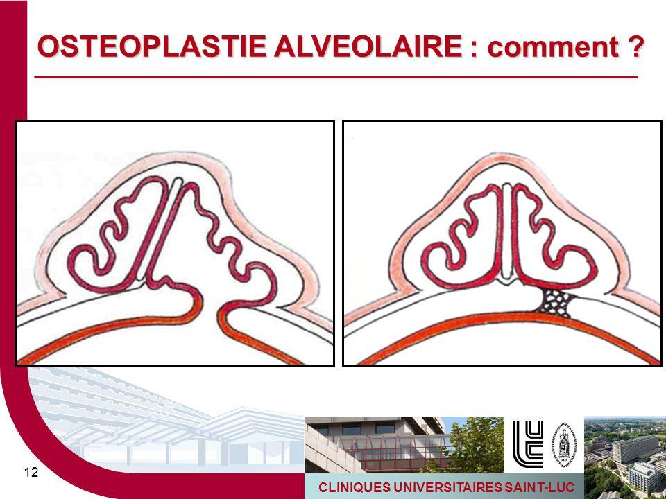 CLINIQUES UNIVERSITAIRES SAINT-LUC 12 OSTEOPLASTIE ALVEOLAIRE : comment ?
