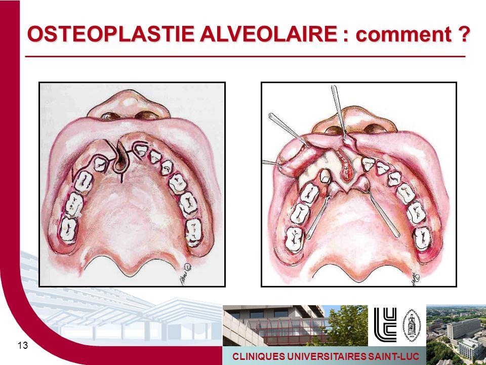 CLINIQUES UNIVERSITAIRES SAINT-LUC 13 OSTEOPLASTIE ALVEOLAIRE : comment ?